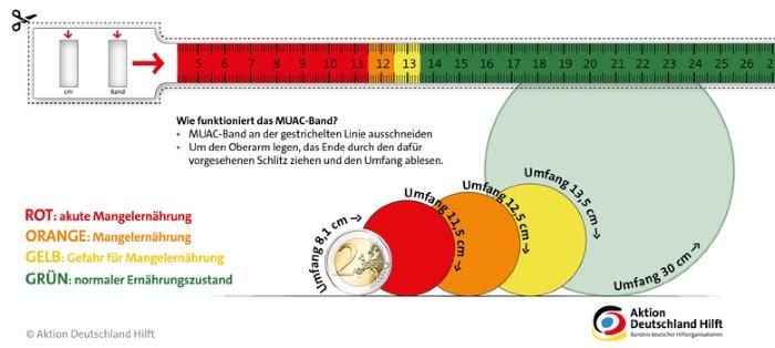 MUAC-Band - Quelle: Aktion Deutschland Hilft